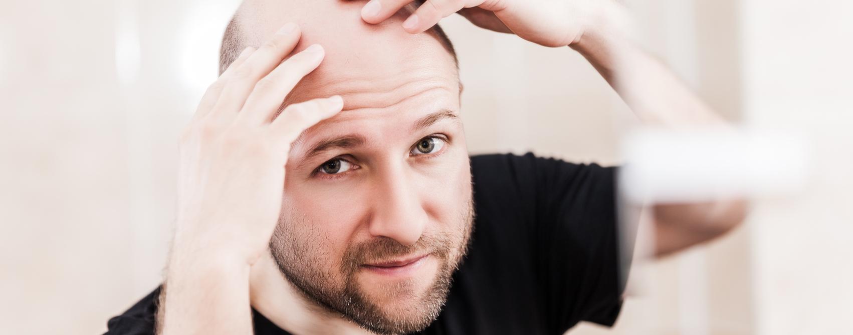 Medikamente gegen Haarausfall können Impotenz auslösen